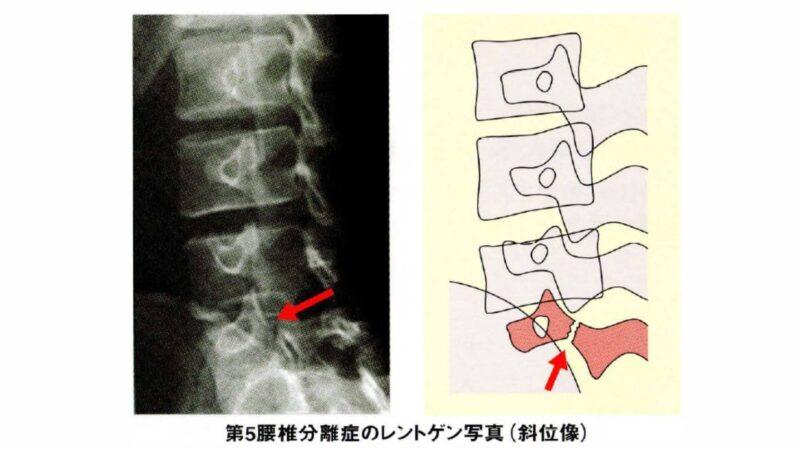 腰椎分離症の画像